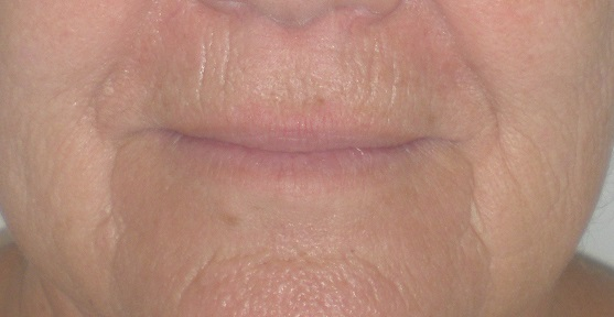 Cosmetic Surgery of the Lips