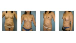 Laser liposuction disaster treated by Tummy tuck