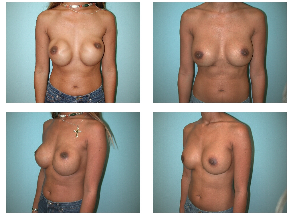 Breasts types