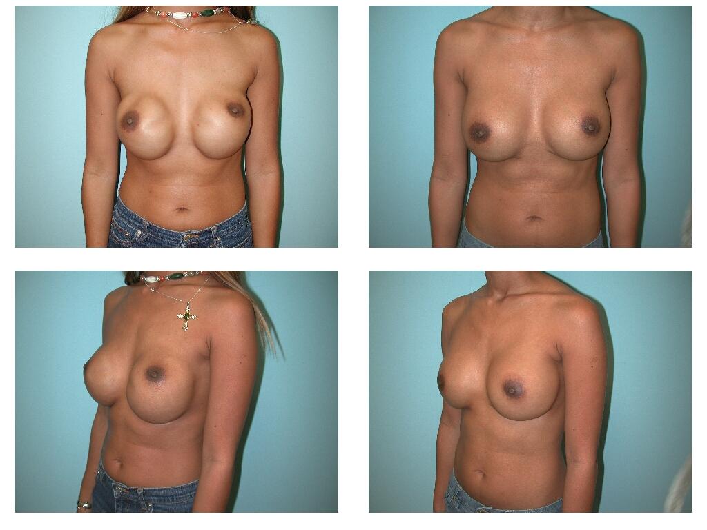 Vegas vanessa marcil nipples