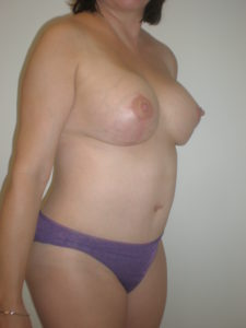 after tummy tuck photo