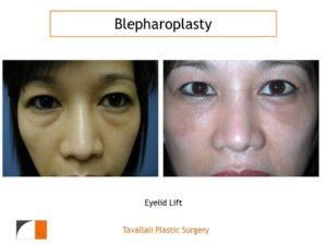 Blepharoplasty_Eyelid_Lift
