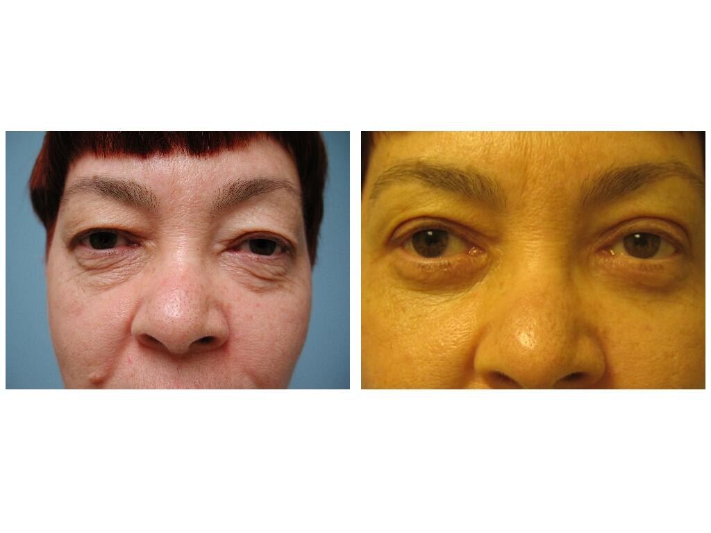 Cosmetic Eyelid surgery news