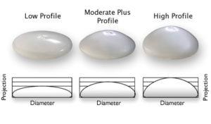 Breast implant profile