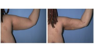 Arm liposuction photo