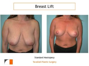 Breast lift photo