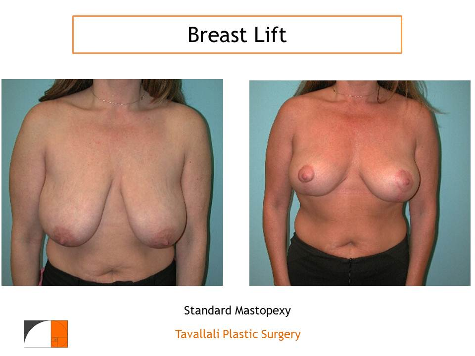 Breast Lift, Augmentation or Both?