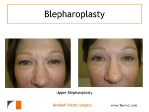 Eyelid plastic surgery, blepharoplasty, plastic surgeon in Virginia, eye surgery