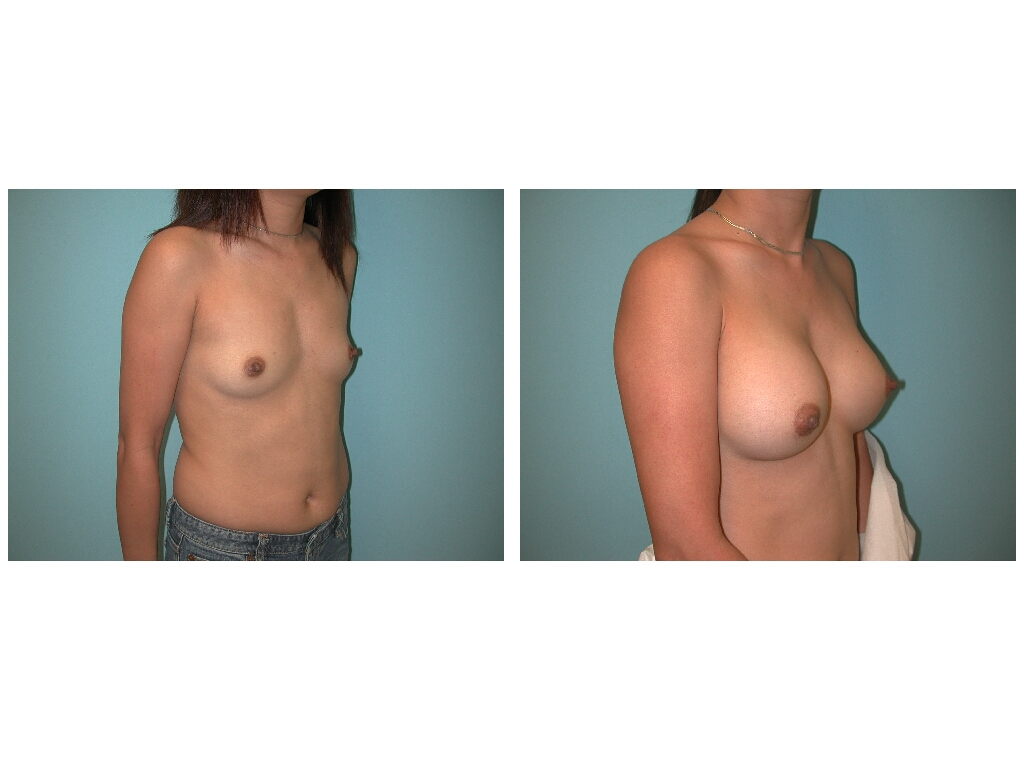 Abnormal Pain after Breast Augmentation-2 Desensitization Helps