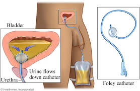 urinary catheter