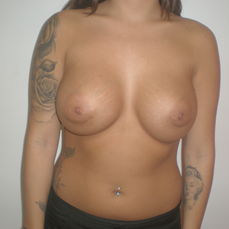 Before breast revision surgery