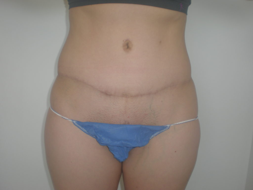 High abdominoplasty scar