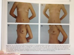 Breast augmentation with fat injections