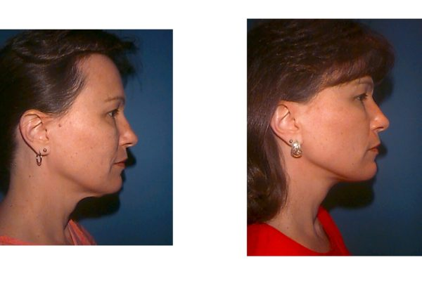 Cosmetic surgery of the neck in woman