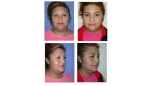 Before & after of face lift surgery