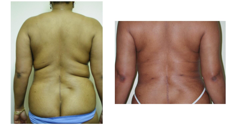 Liposuction of Back Rolls