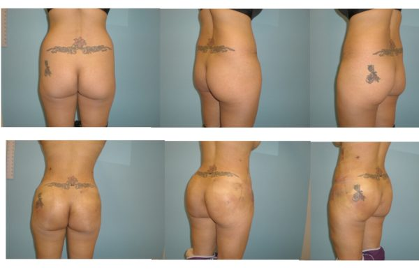 BBL Brazilian buttock lift early result