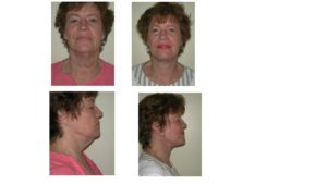 Facelift before and after in woman