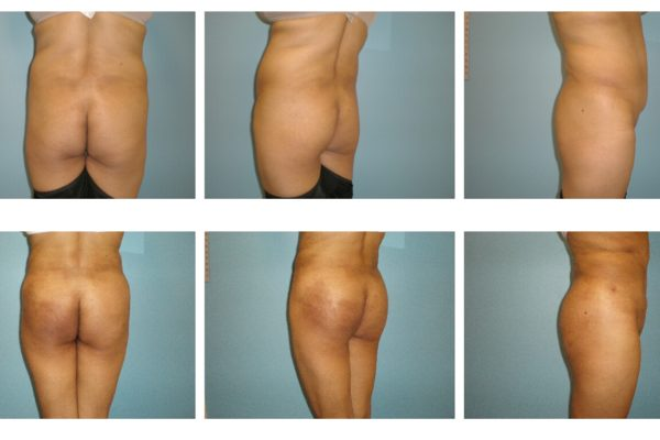 BBL Brazilian buttock lift liposuction hips fat injection early result