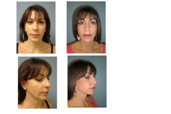Younger woman with facelift surgery result