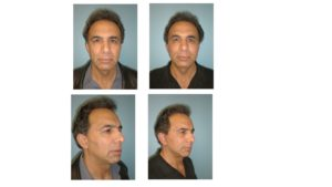 Man with facelift surgery result