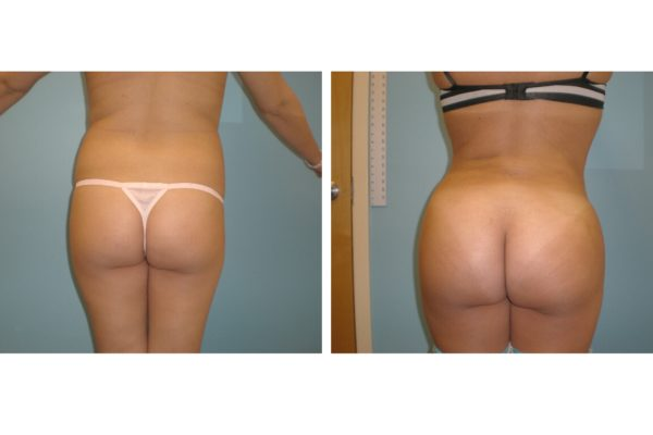 BBL Brazilian buttock lift liposuction hips fat injection before after