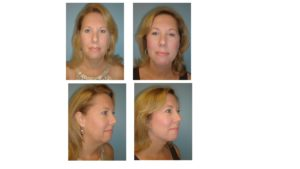 Woman before and after mini facelift result
