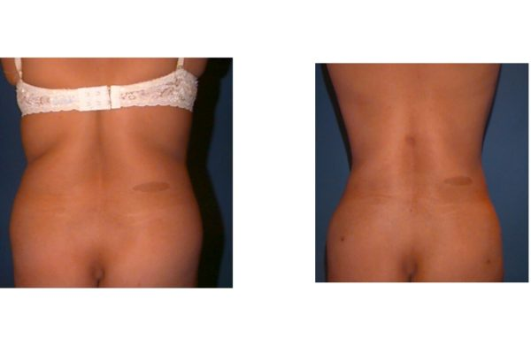 Liposuction back fat before after