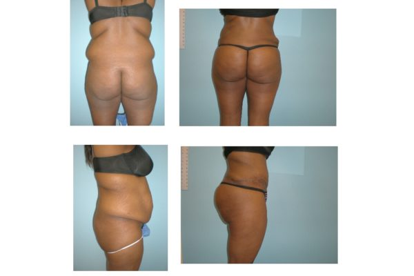 BBL Brazilian buttock lift abdominoplasty fat injection