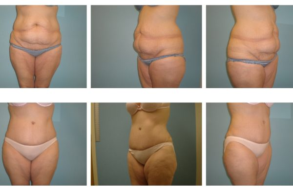 Tummy tuck abdominoplasty before after VA