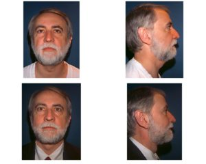man with beard after neck lift