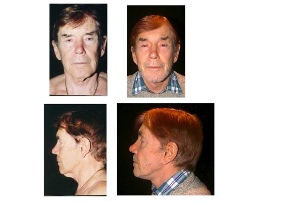 Secondary facelift result in man