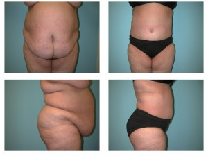 Tummy tuck abdominoplasty before after