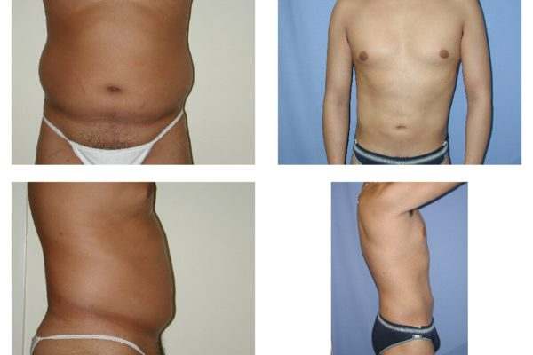 Liposuction belly and love handles in man 2 views