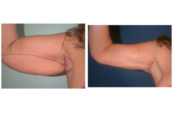 Arm Lift Before & After axillary scar