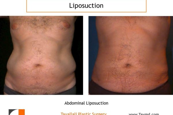 Liposuction surgery of man's abdomen before after Northern Virginia