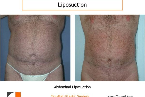 Lipo abdomen in man before after Northern VA