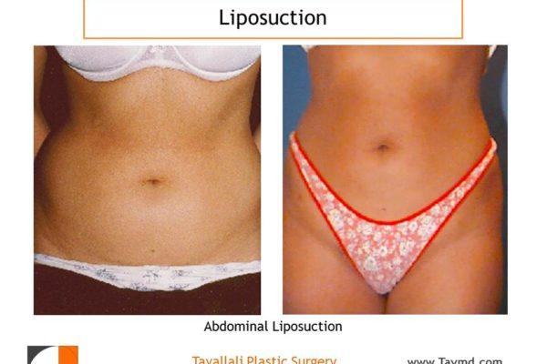 Lipo abdomen before after Northern VA