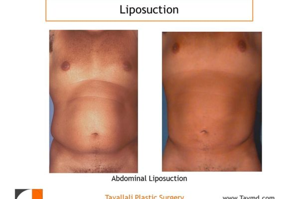 Liposuction belly and love handles in man