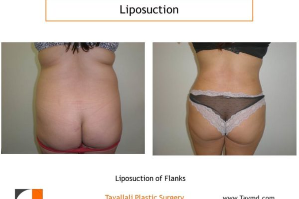Liposuction hips in woman result