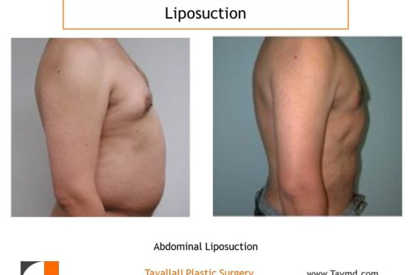 Profile of liposuction of chest and abdomen in man