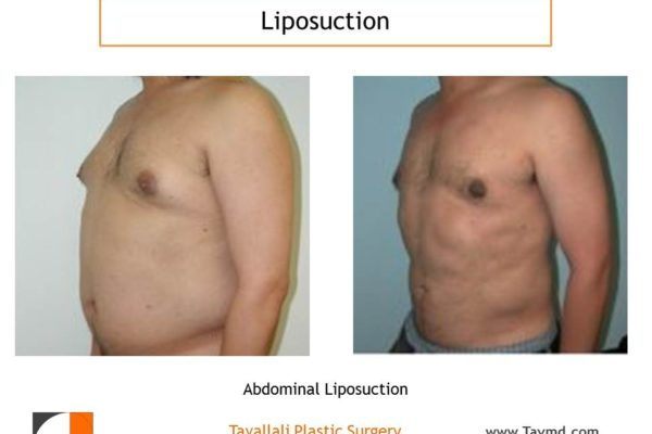 Liposuction of man's chest and abdomen before and after