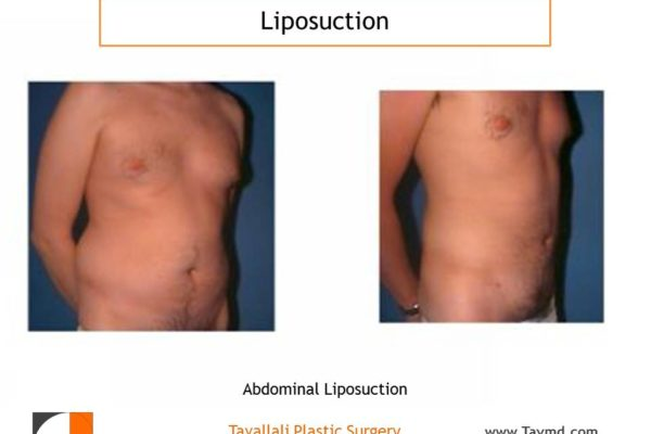Liposuction abdomen and chest in man before after