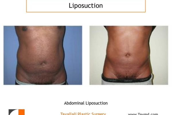 Abdominal liposuction result