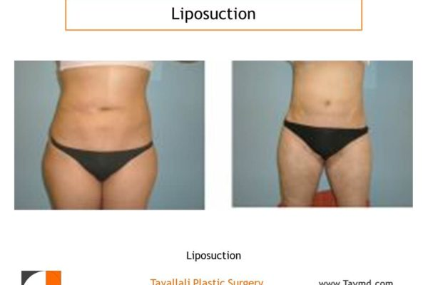 Liposuction surgery of abdomen