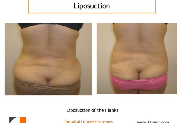 Lipo of hips