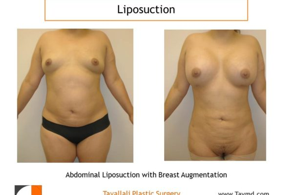 Lipo of abdomen in woman