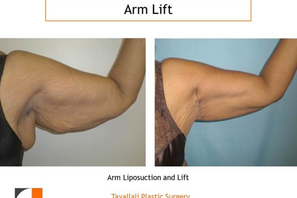 Arm Liposuction and lift Before & After