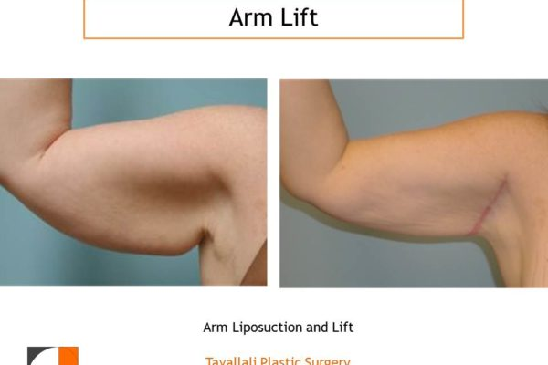 Arm Lift Before & After with early scar