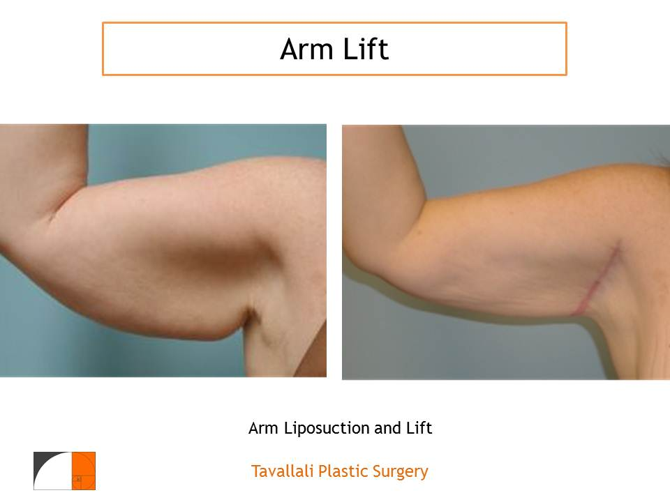 Laser Liposuction, Ultrasound Liposuction or Power-assisted Liposuction?